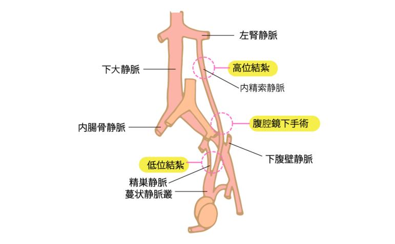 精索静脈瘤の手術療法