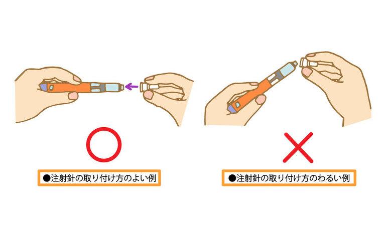 インスリン注射針の取り付け方