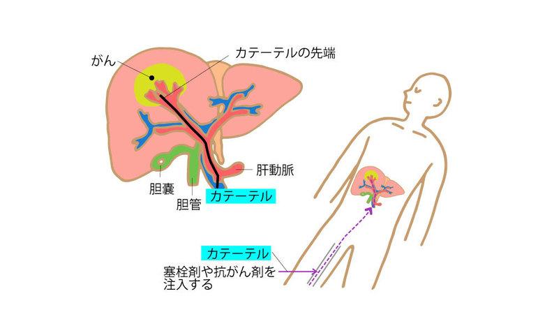肝動脈化学塞栓(かんどうみゃくかがくそくせん)療法(TACE)