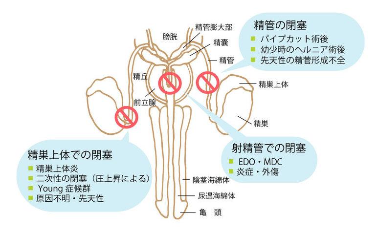 閉塞性無精子症の原因