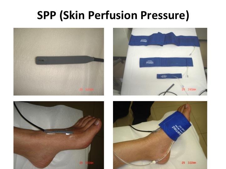 SPPの測定