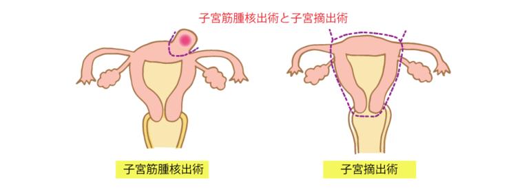 子宮筋腫核出術と子宮摘出術