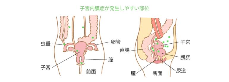 子宮内膜症が発生しやすい部位