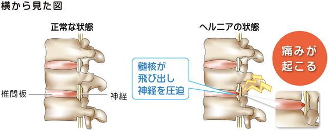 椎間板ヘルニアの状態