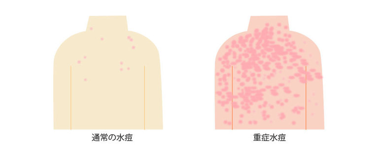 通常の水痘と重症水痘