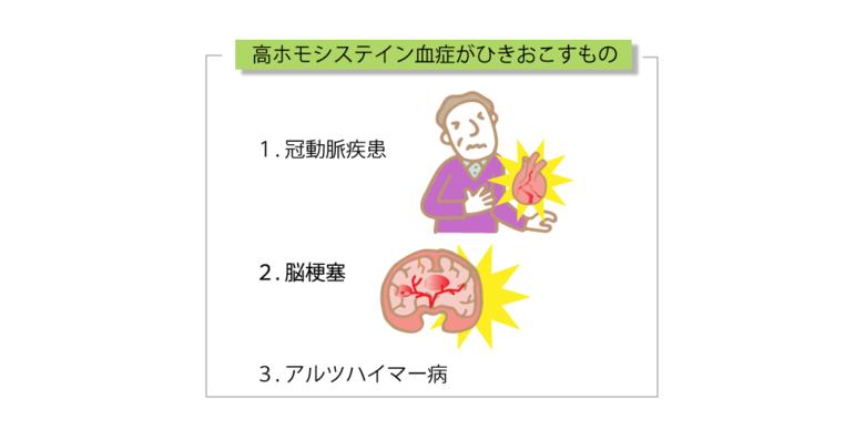 高ホモシステイン血症が引き起こすもの