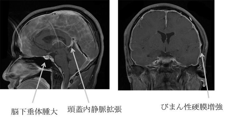脳脊髄液減少症の造影MRI