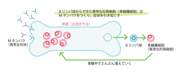 Bリンパ球が骨髄腫細胞に変化してMタンパクをつくります
