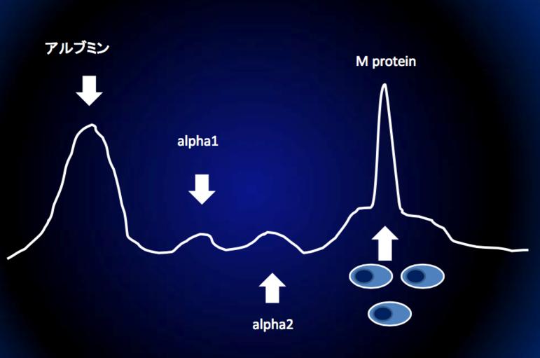 右のほうに急な山型があります。これはMタンパクがあることを示しています。