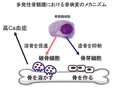 多発性骨髄腫における骨病変のメカニズム
