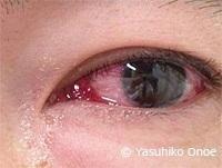 クラミジア封入体結膜炎
