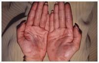 第2期の症状(丘疹性梅毒疹1)