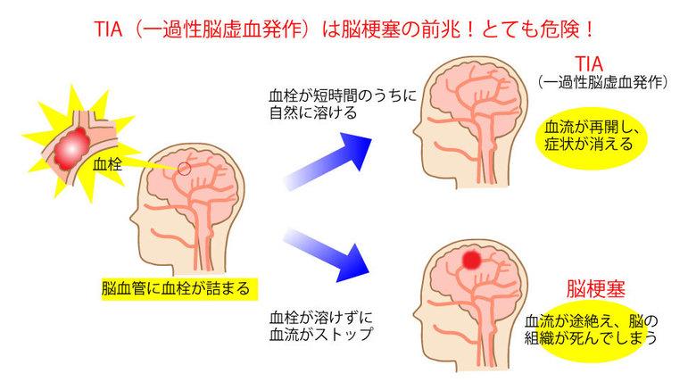 一過性脳虚血発作は脳梗塞の前兆!