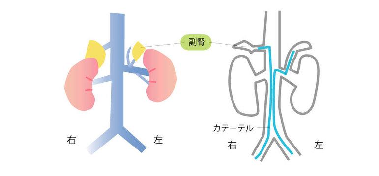 副腎静脈サンプリングとカルーテル