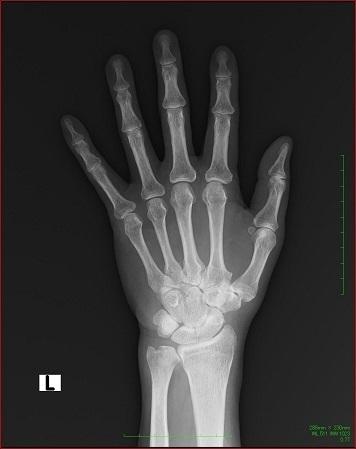 関節リウマチ発症初期のレントゲン写真