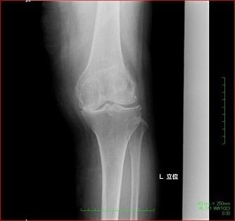 膝の人工関節置換術の例(手術前)