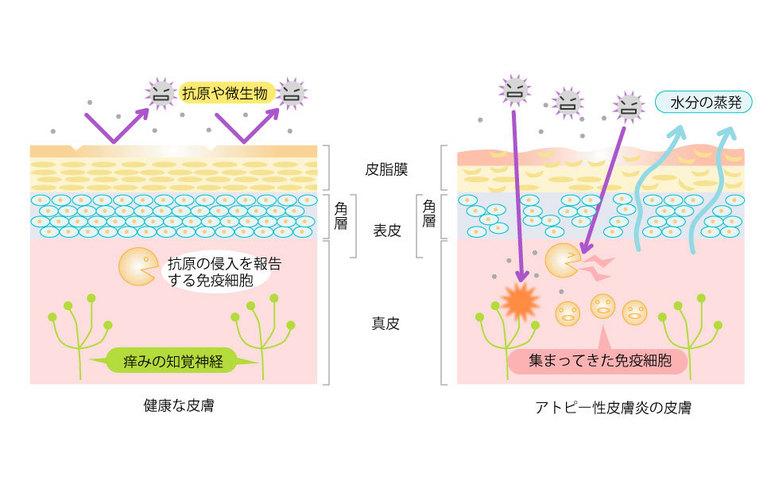 健康な皮膚とアトピー性皮膚炎の皮膚