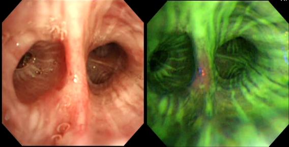 左:肉眼像 右:自家蛍光気管支鏡