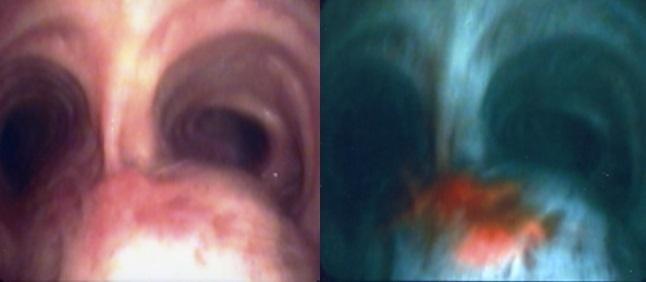 左:肉眼 右:PDTを用いた場合