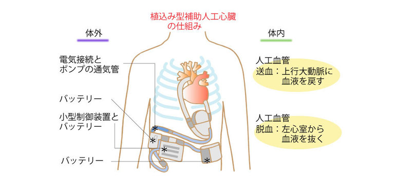 植込み型補助人工心臓の仕組み