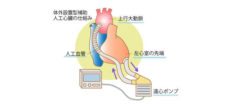 体外設置型補助人工心臓の仕組み