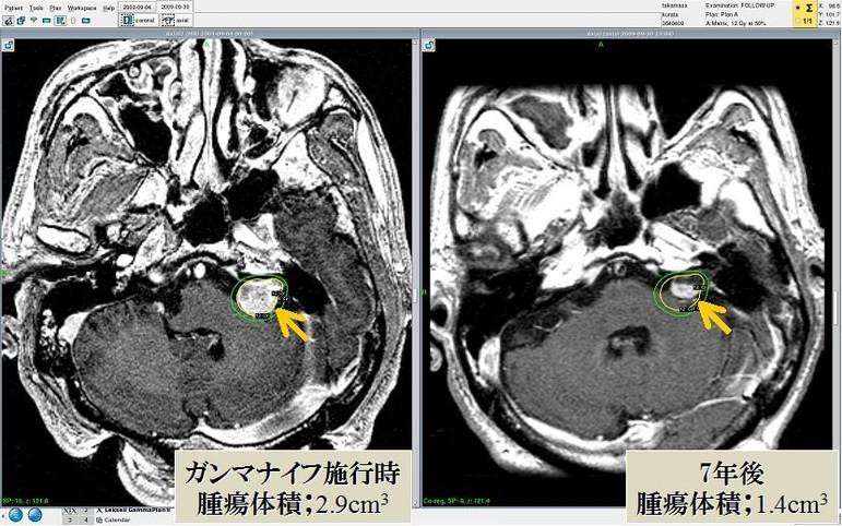 聴神経腫瘍におけるガンマナイフ治療後の経過