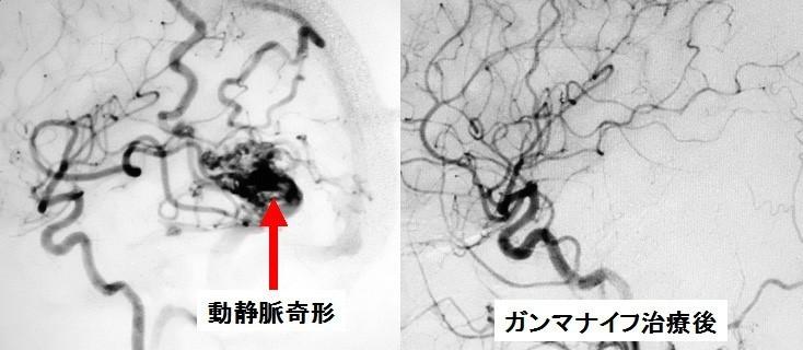 動静脈奇形におけるガンマナイフ治療後の経過