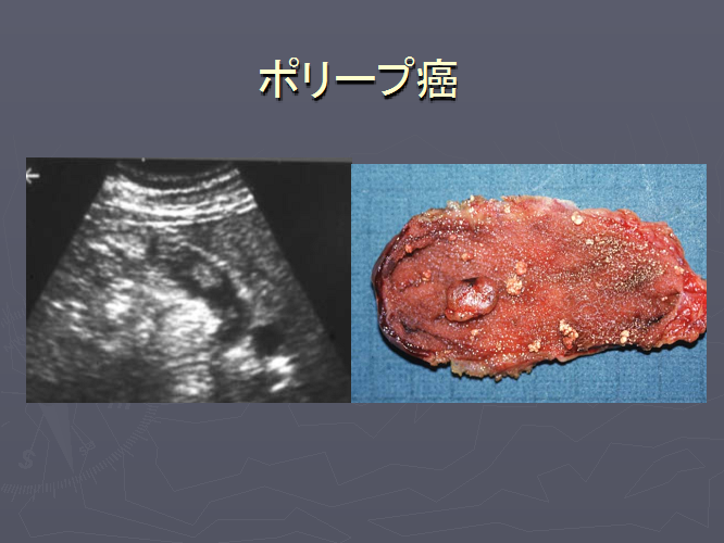 胆のうのポリープ癌