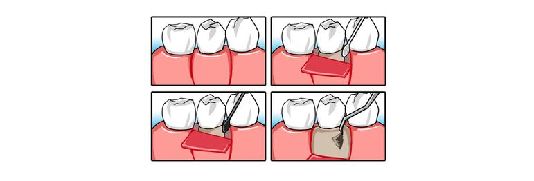フラップ手術のイメージ