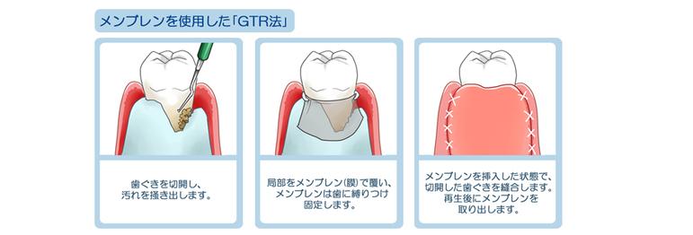 メンブレンを使用した「GTR法」