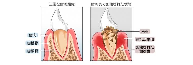 正常な歯周組織と歯周炎で破壊された歯周組織