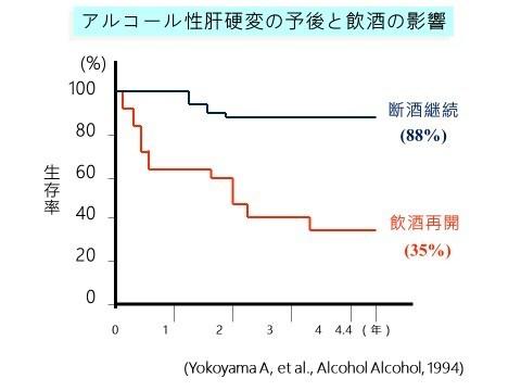 アルコール性肝硬変の予後と飲酒の影響