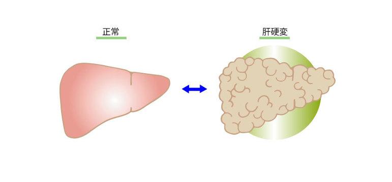 正常な肝臓と肝硬変の肝臓
