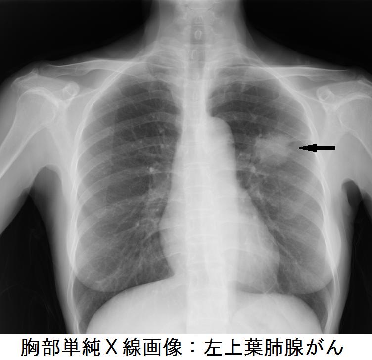 胸部単純X線画像:左上葉肺腺がん
