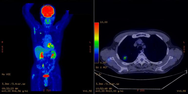 PET-CT画像