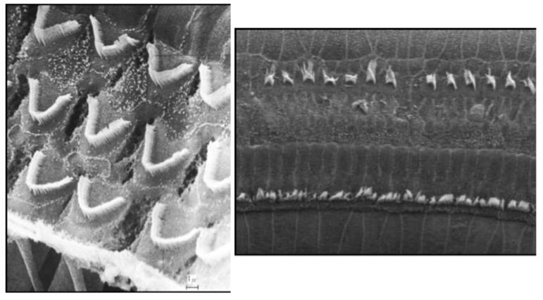 左:正常な有毛細胞、右:有毛細胞が消失した状態