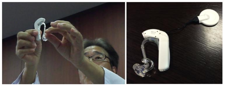 残存聴力活用型人工内耳:EAS
